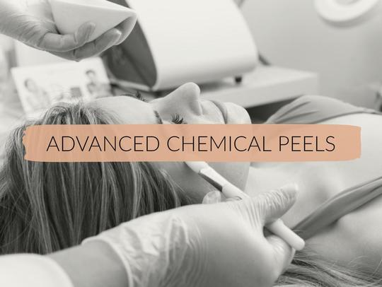 Advanced Chemical Peel Course